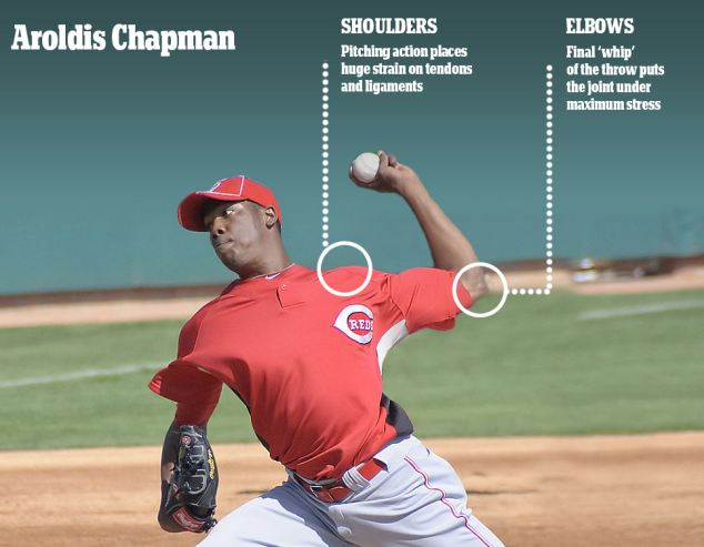 Aroldis Chapman pitching arm care image